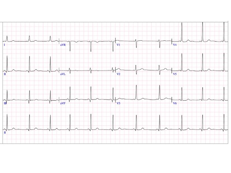 ECG - Patient with WPW